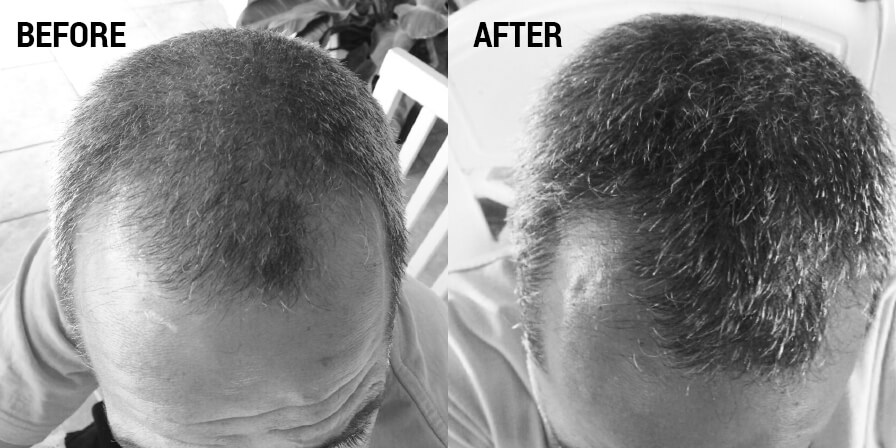 The Natural Hair Loss Treatment Is Here!